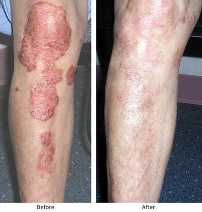 Psoriasis Treatment American Skin Institute