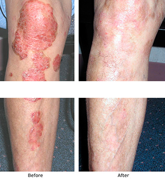Psoriasis-Treatment-Before-After