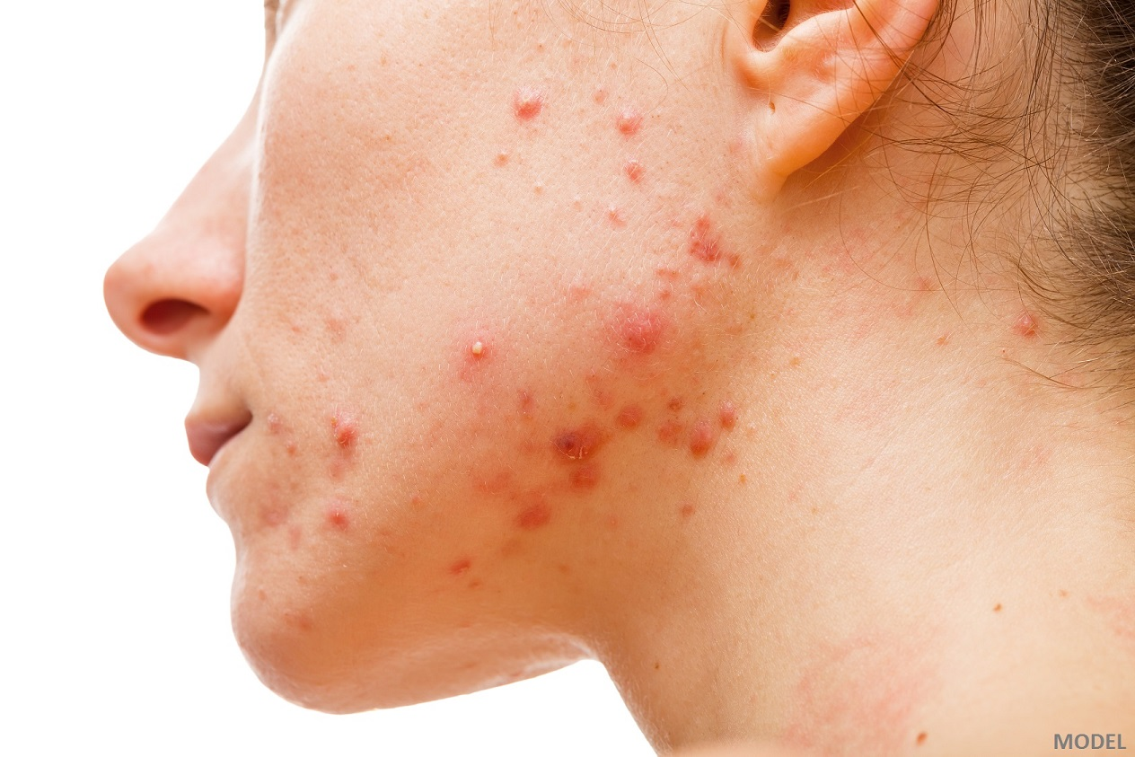 Acne Extraction - American Skin Institute
