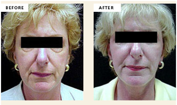 Facelifts - American Skin Institute